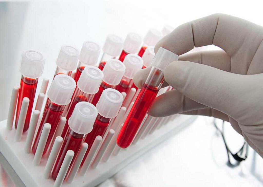 Биохимический анализ крови – наиболее точный метод выявления аллергенов в организме