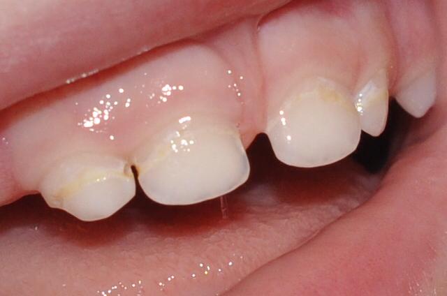 Повреждение молочных зубов