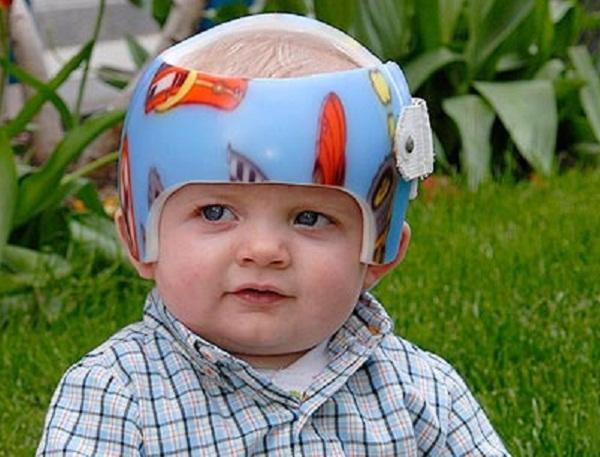 Литой шлем-шапка