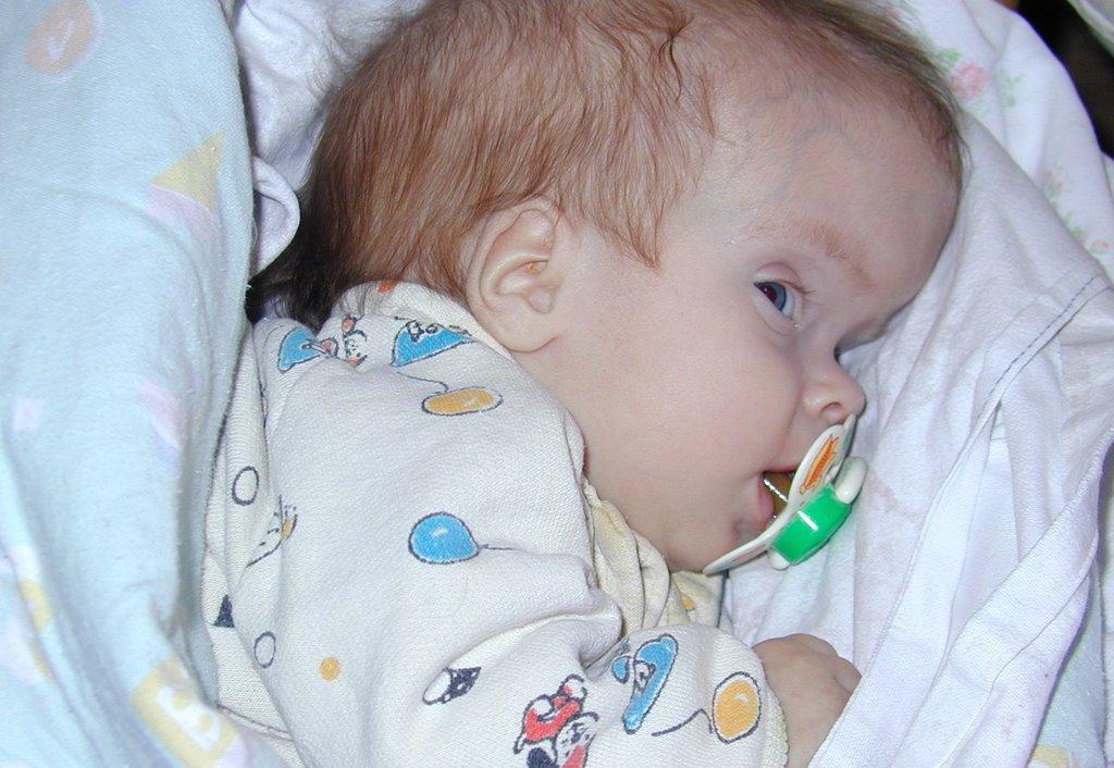 Голова младенца при поражении гидроцефалией