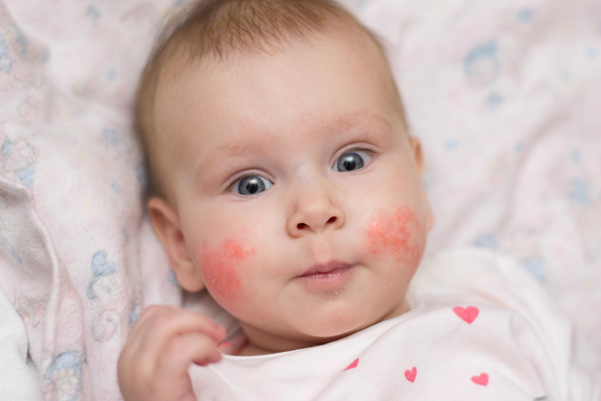 Пищевая аллергия у младенца