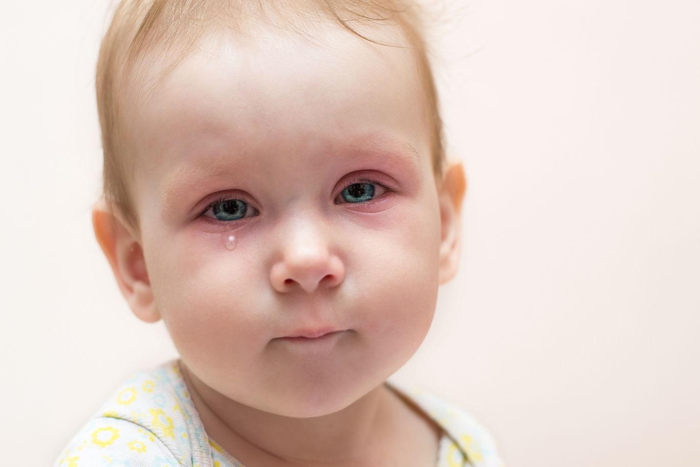 Слезоточивость и ринит – первые признаки аллергии