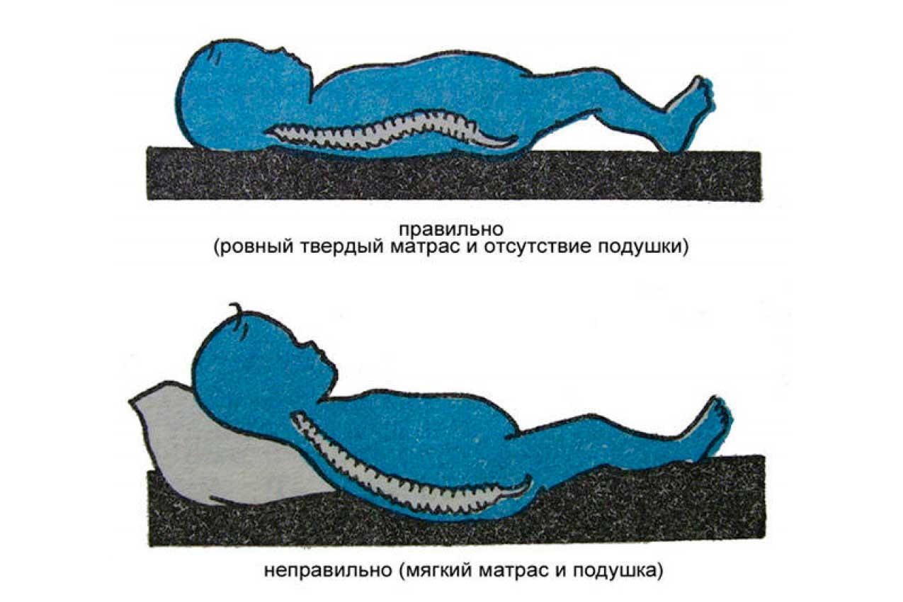 Правильно подобранный матрас и отсутствие подушки – залог крепкого сна