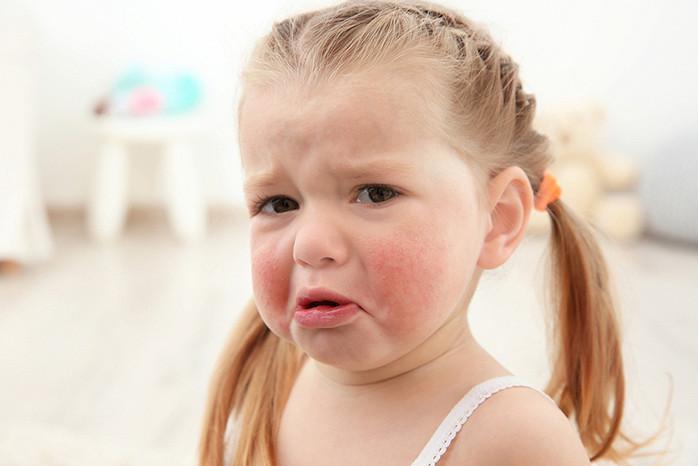 Аллергия на киви у детей