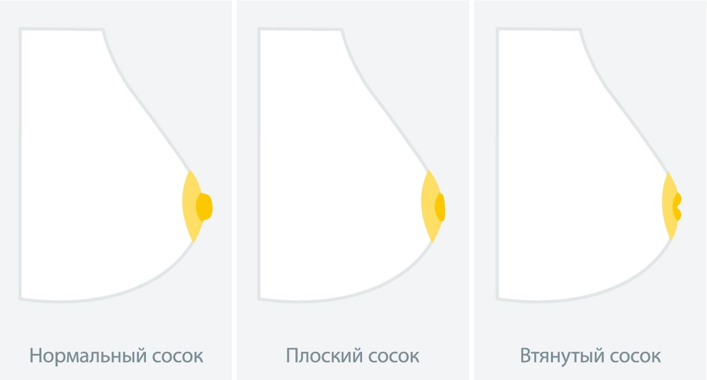 Различные формы сосков