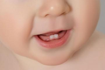 Первые молочные зубки у ребенка