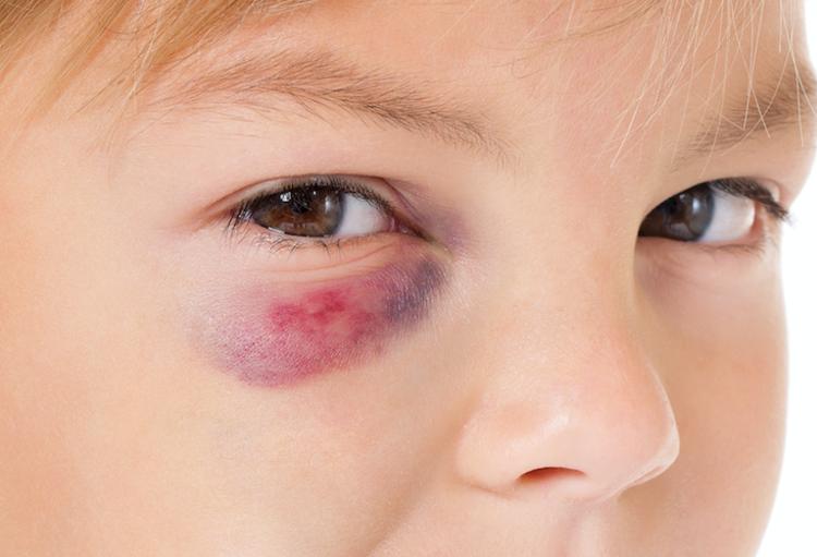 Травматические синяки под глазами