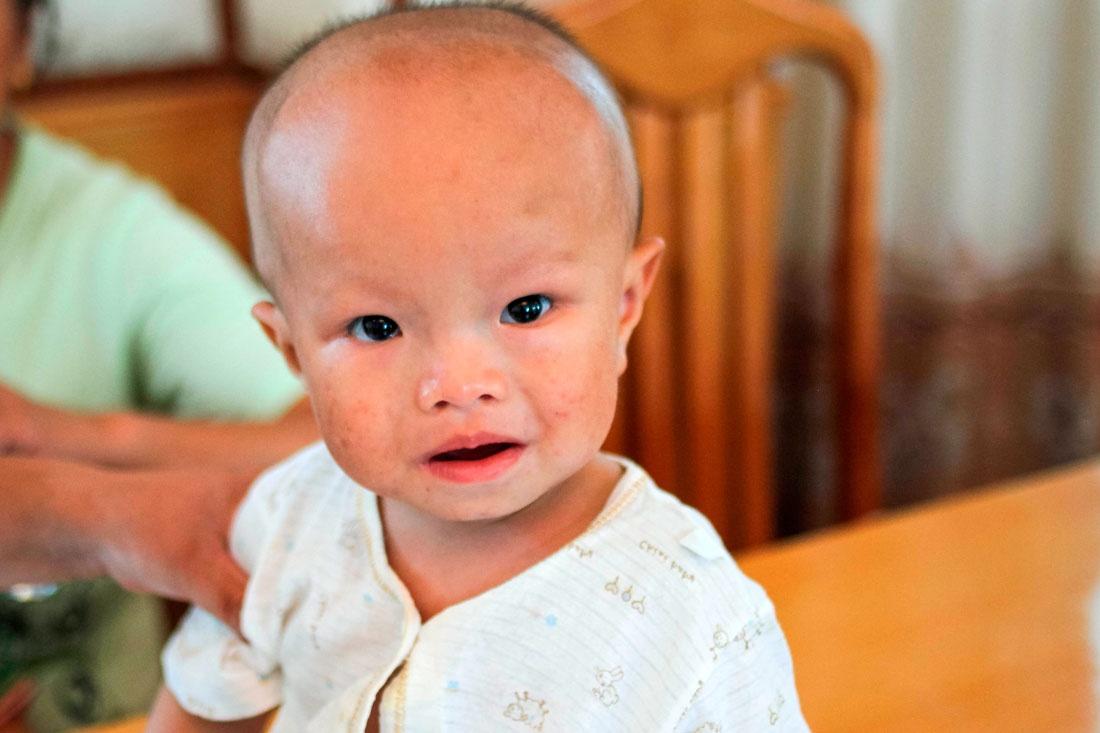 Гидроцефалия у ребенка