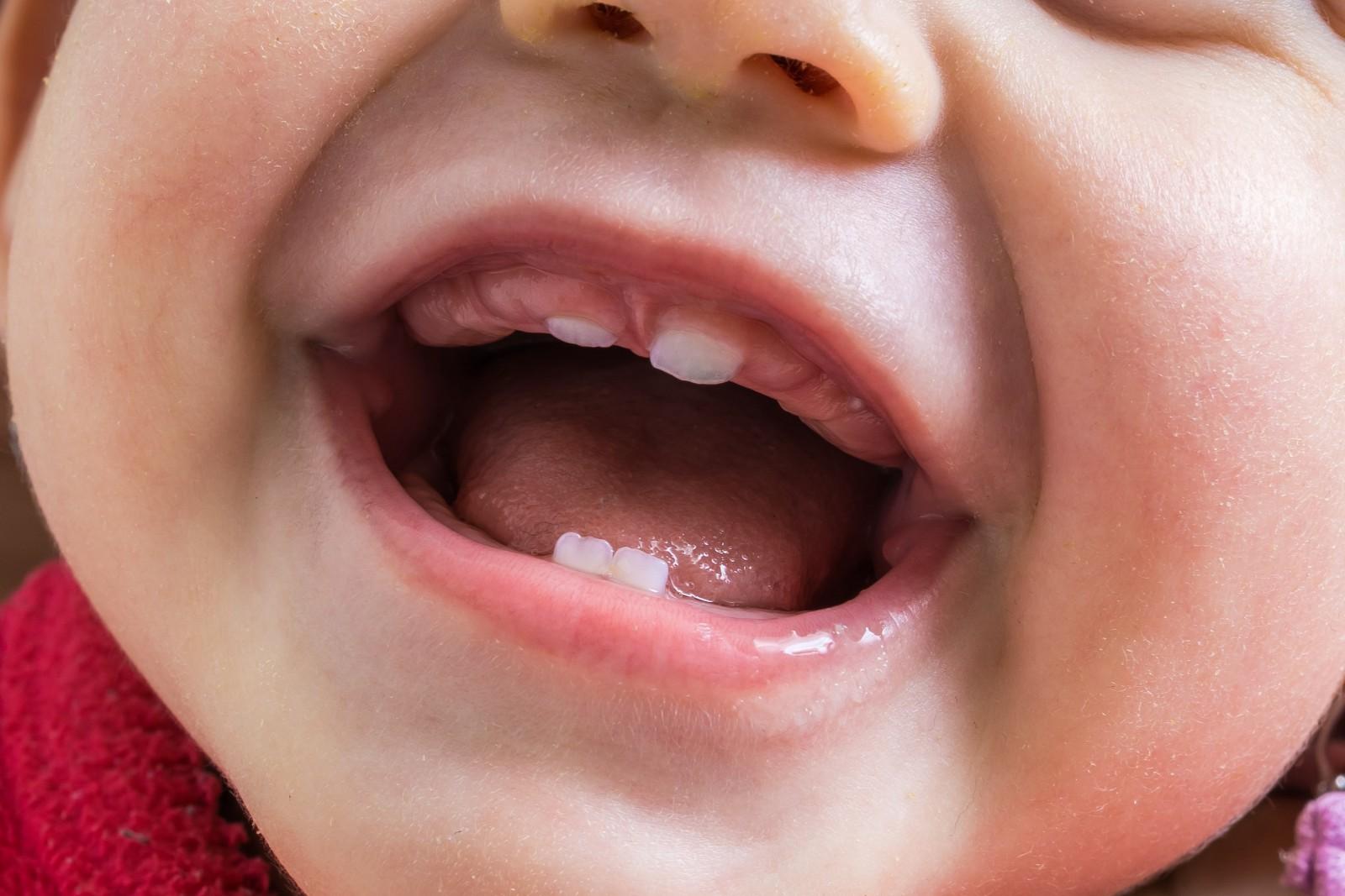 Родители всегда очень ждут, когда у их малыша начнут расти зубки