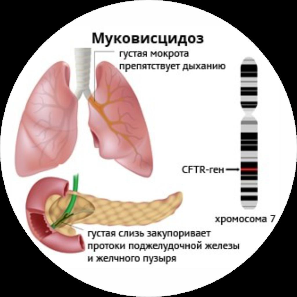 Проявления муковисцидоза