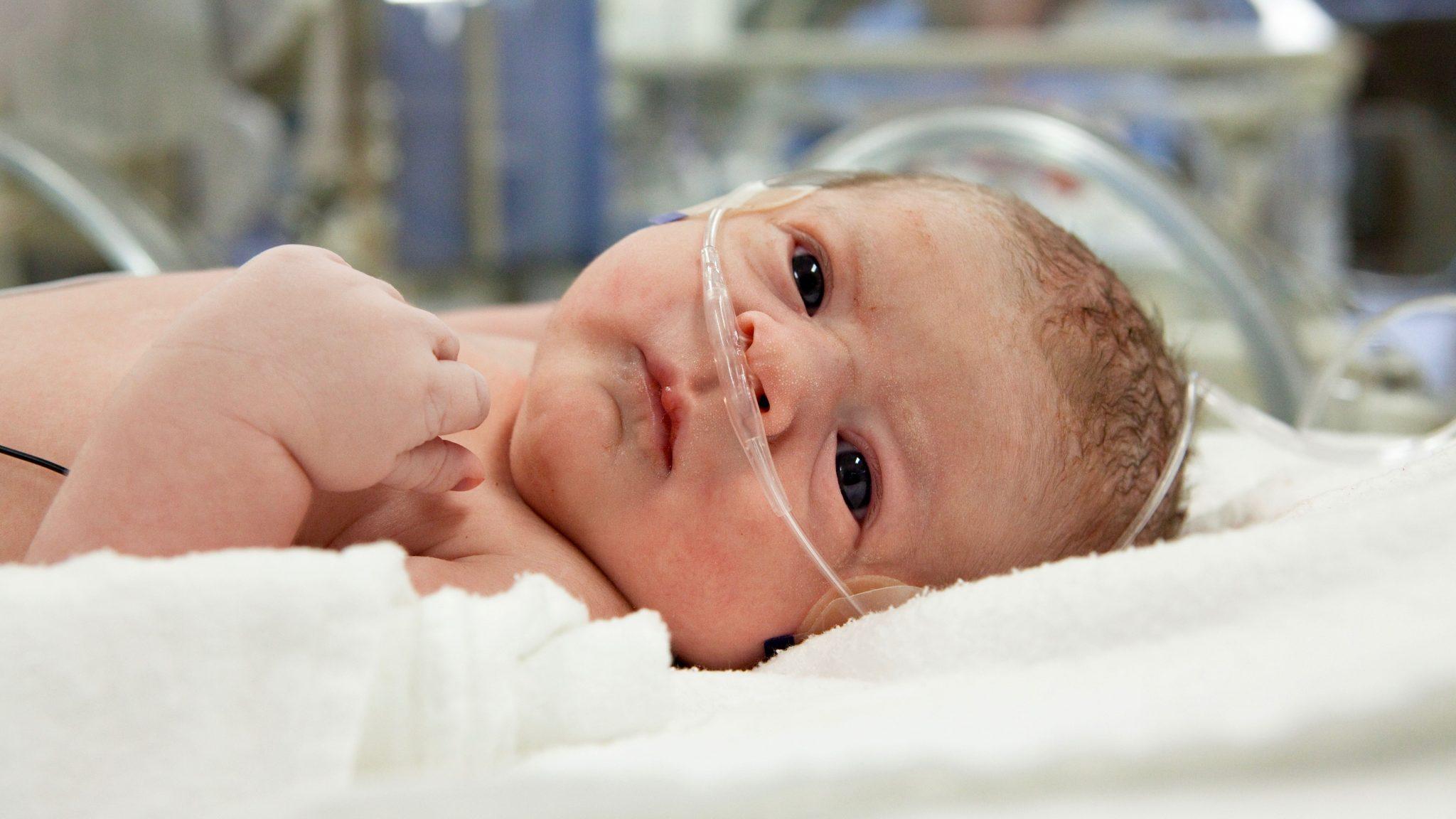 Малыш, перенесший гипоксию в родах
