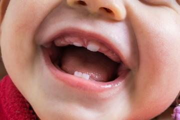 Прорезывание зубок – важный этап в жизни каждого грудничка