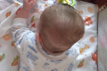 Скошенный затылок у ребенка