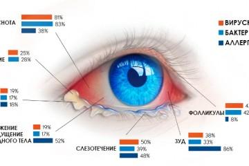 Инфографика неонатального конъюнктивита