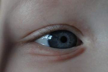 Прыщик возле глаза грудного младенца