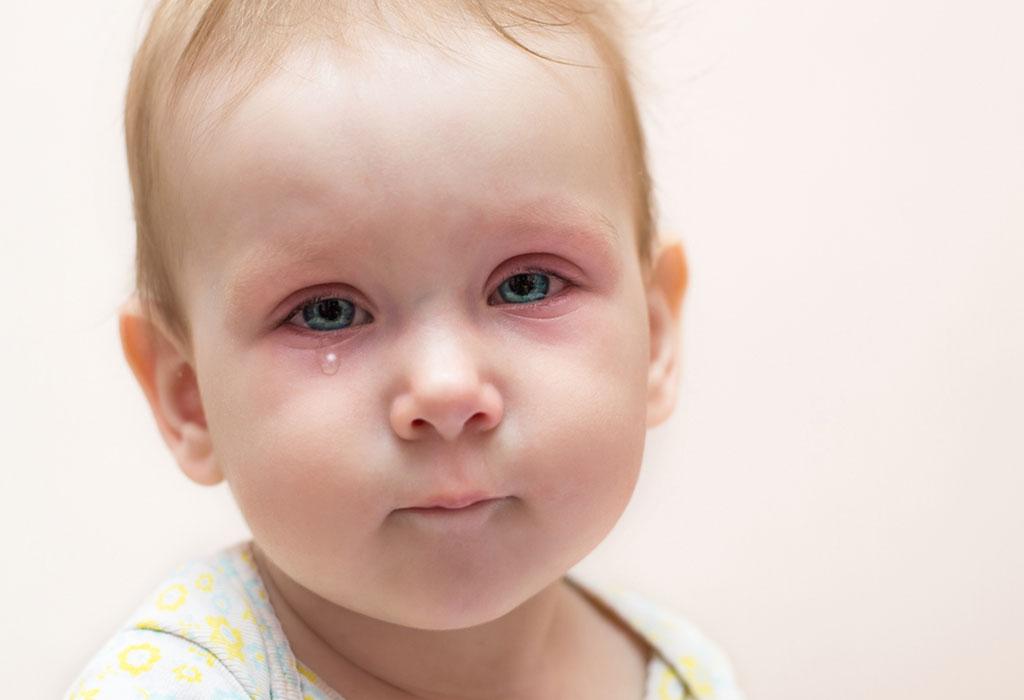 Красные глазки у грудничка