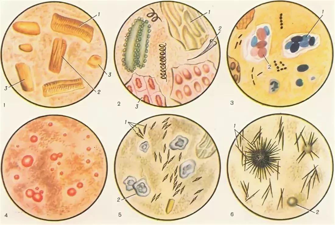 Копрограмма – микроскопическое исследование кала