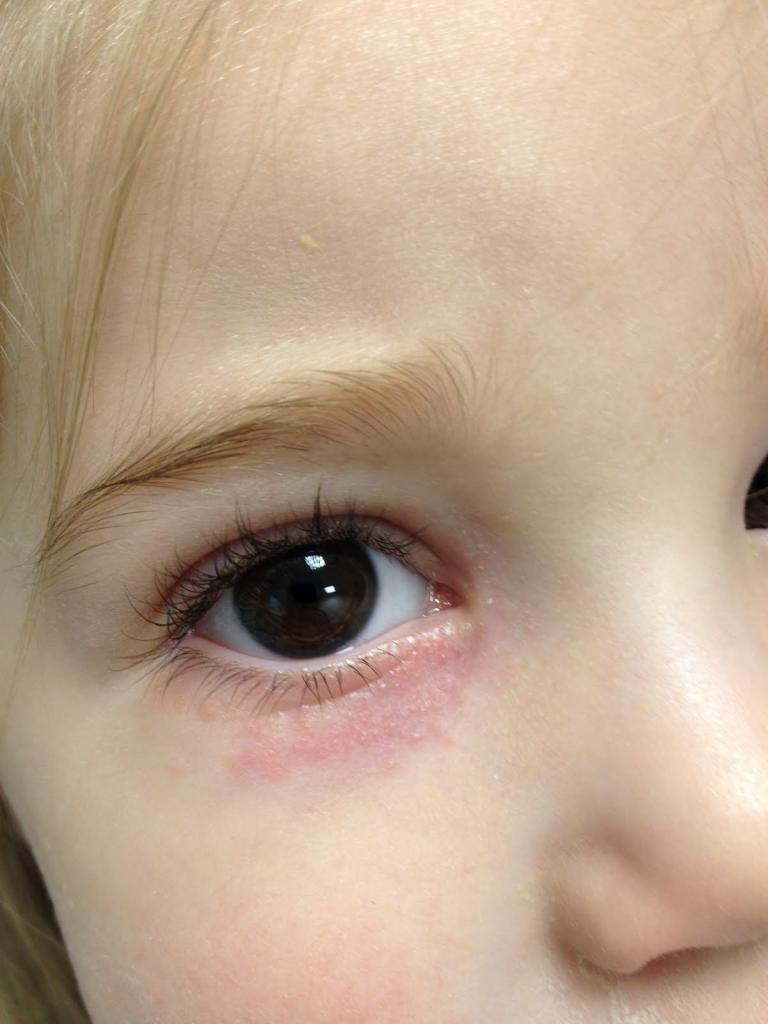 Сыпь возле глаз малыша