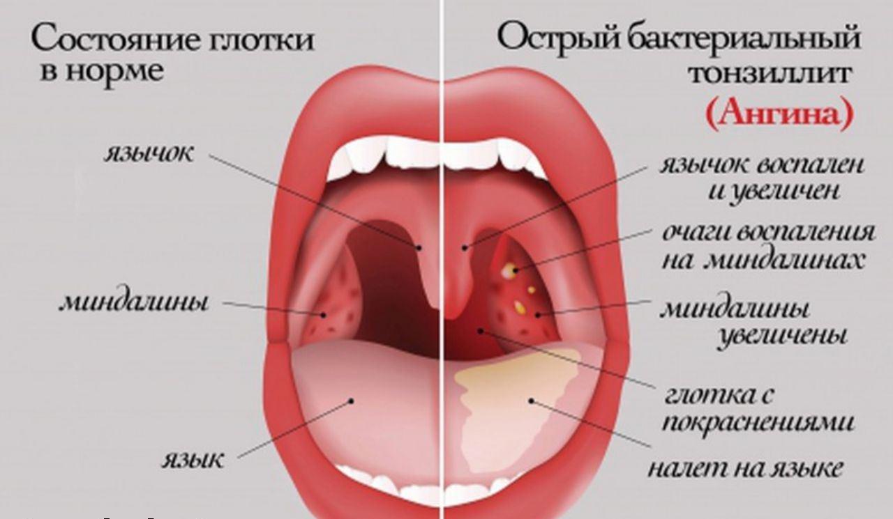 Ротовая полость при ангине