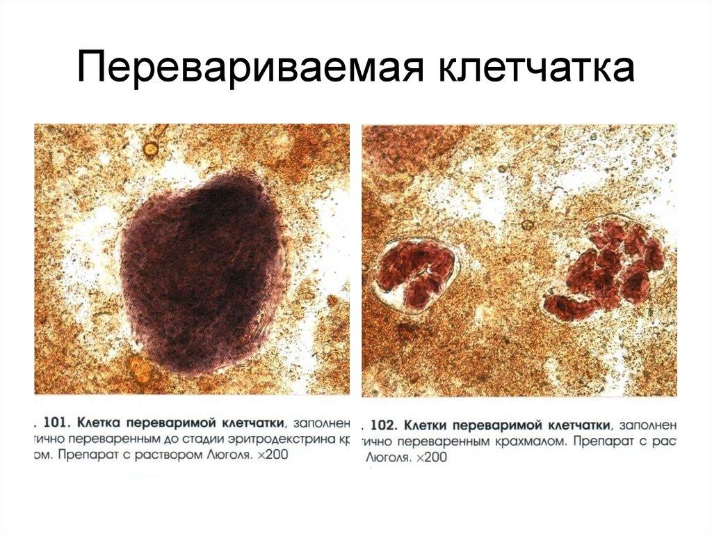 Неперевариваемая клетчатка, заполненная крахмалом, в анализе