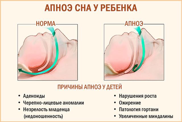 Апноэ у младенца