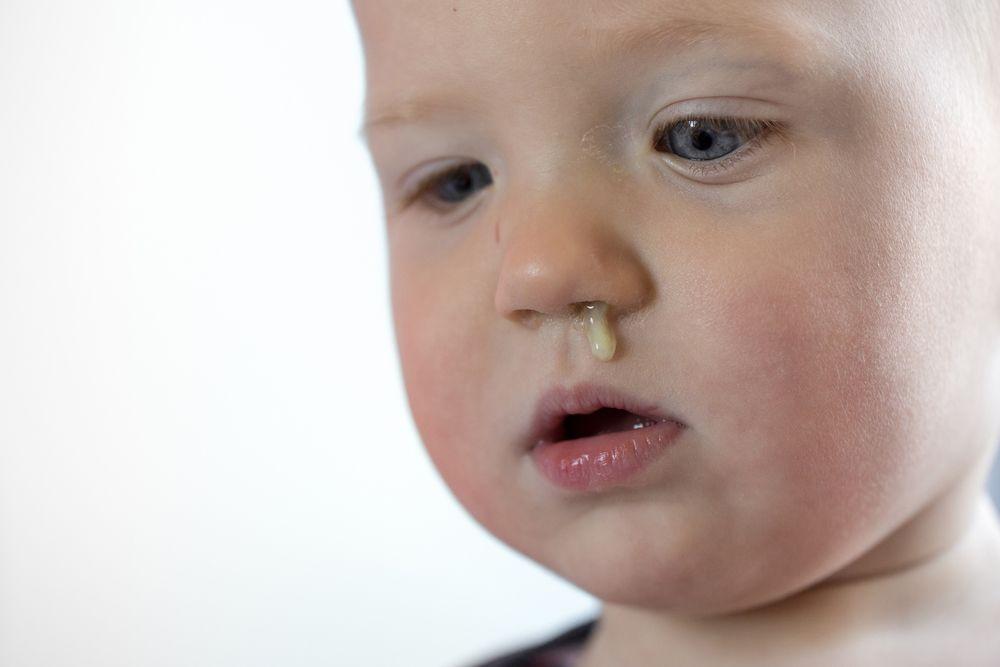 Белые мутные сопли могут стать следствием не долеченного заболевания