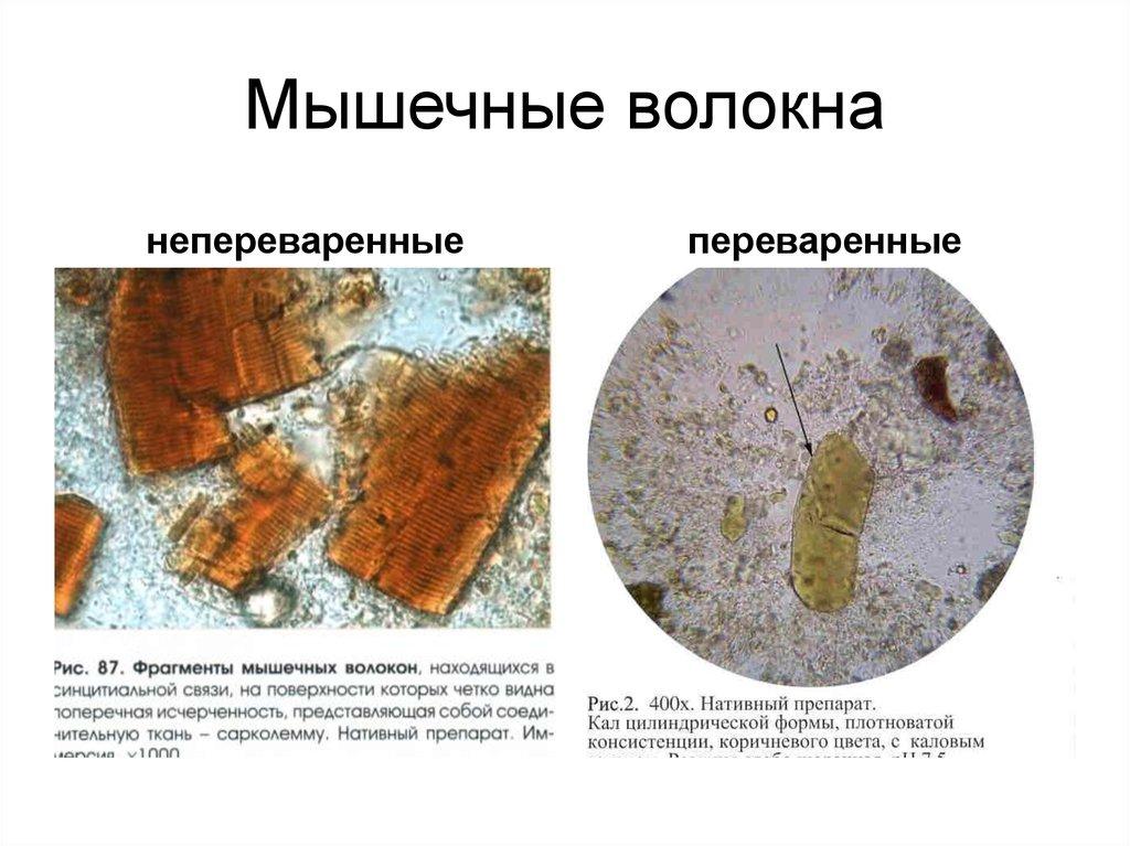 Разновидности мышечных волокон