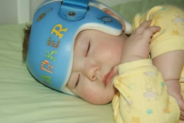Корректирующий шлем