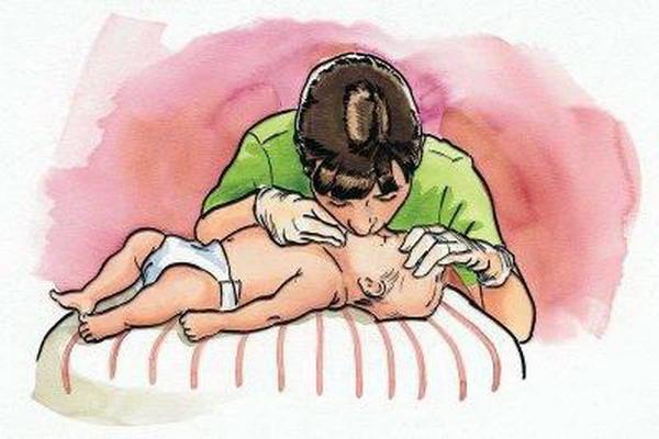 Проведение искусственного дыхания грудничку