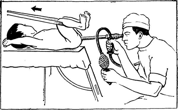 Ректороманоскопия ребенку