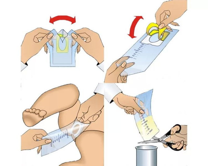 Как правильно использовать мочеприемник