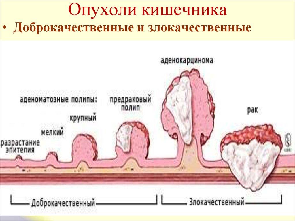 Новообразования в кишечнике