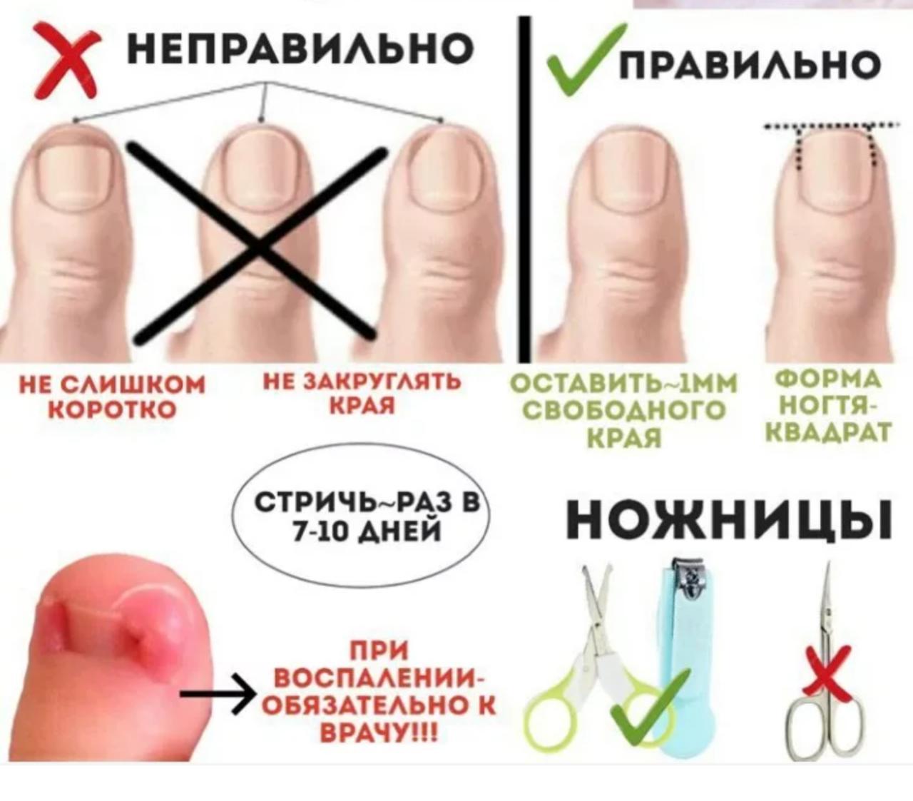 Правила, как стричь ногти