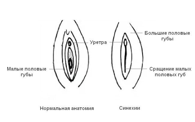Схематическое изображение разницы между нормой и синехиями