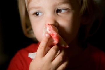 Малыш держит платок с кровью