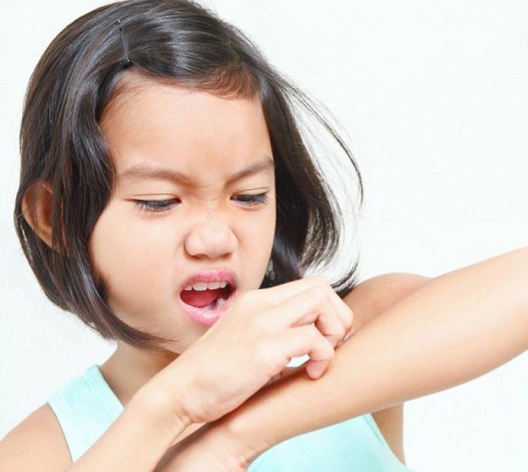 Зуд у ребенка иногда является тревожным сигналом