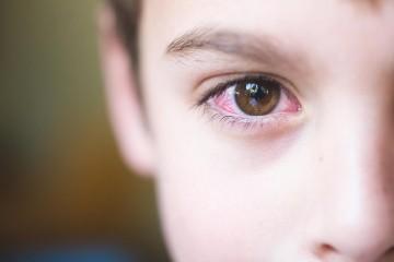 Покраснение глаз у ребенка – симптом, который может быть вызван самыми различными причинами