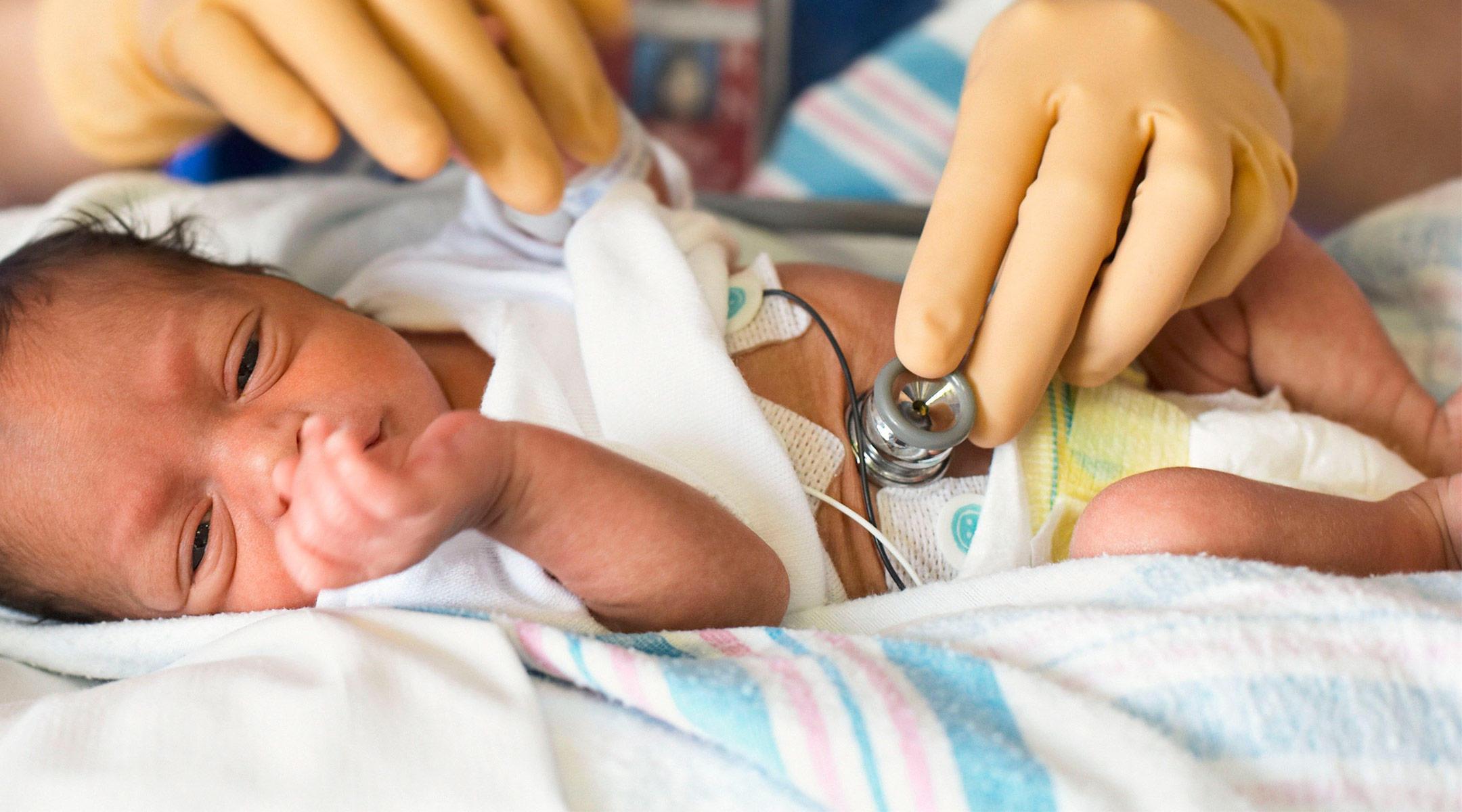 Недоношенные дети чаще подвержены синдрому апноэ