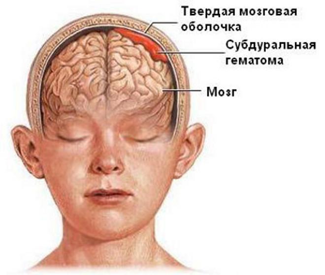 Травма с гематомой