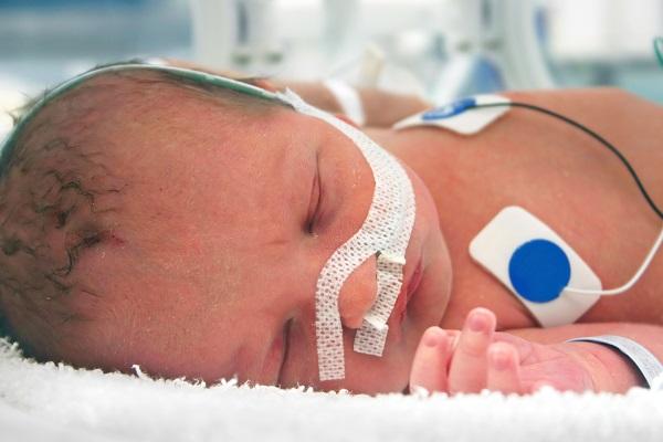 Родовая травма младенца