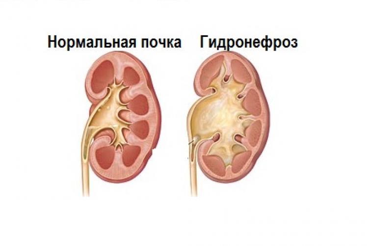Изменение почки при гидронефрозе