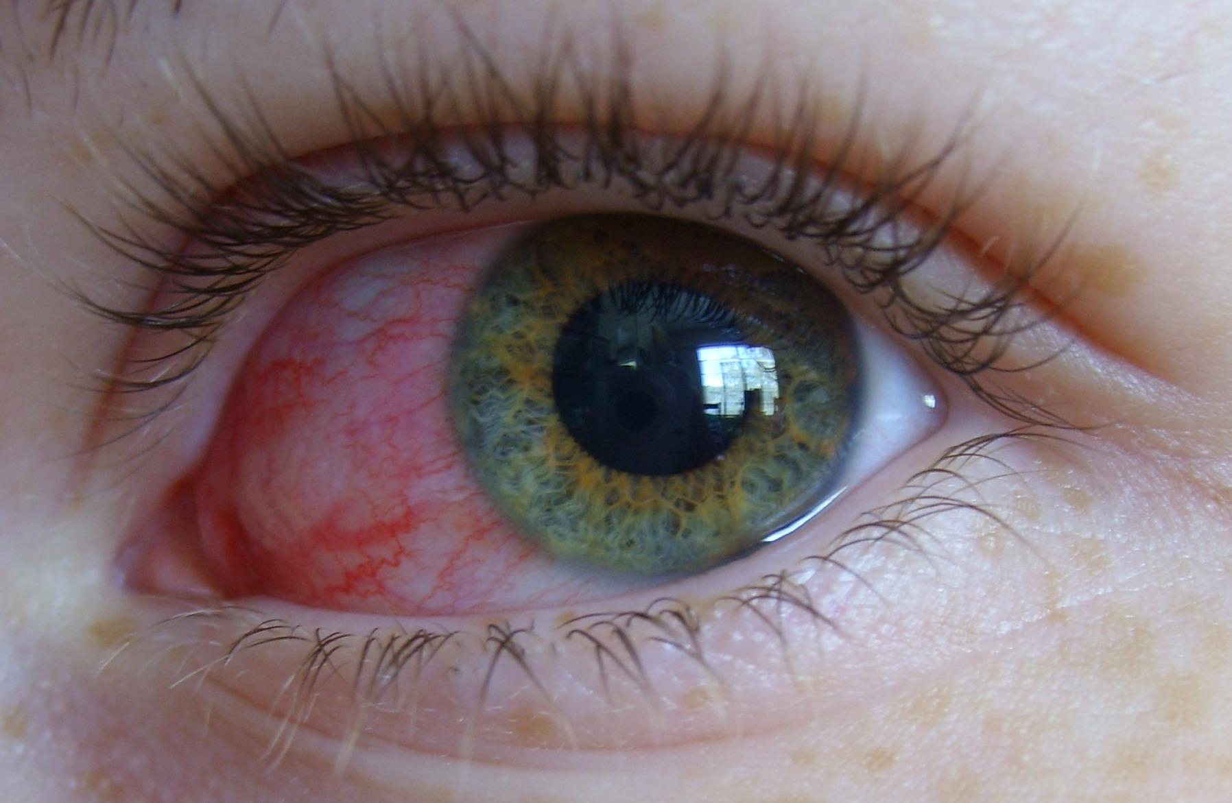 Кровоизлияние в переднюю камеру