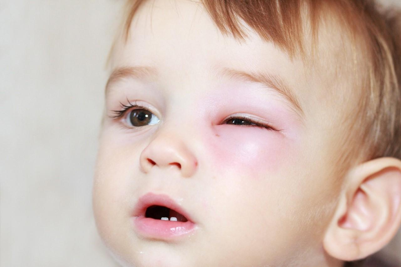 После травмирования глаза