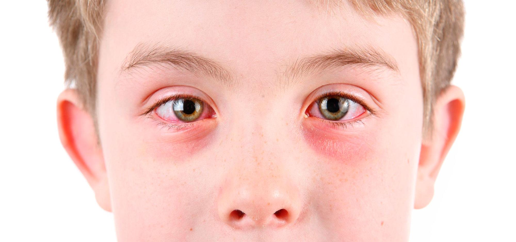 Покраснение глаз, вызванное аллергией