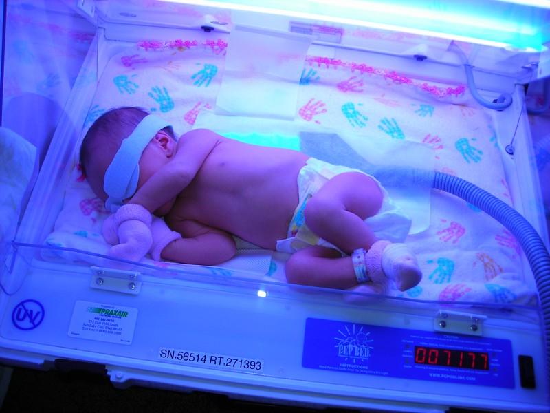 Фотолечение новорожденных