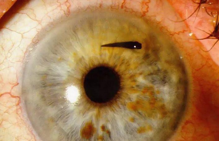 В глаз попала соринка