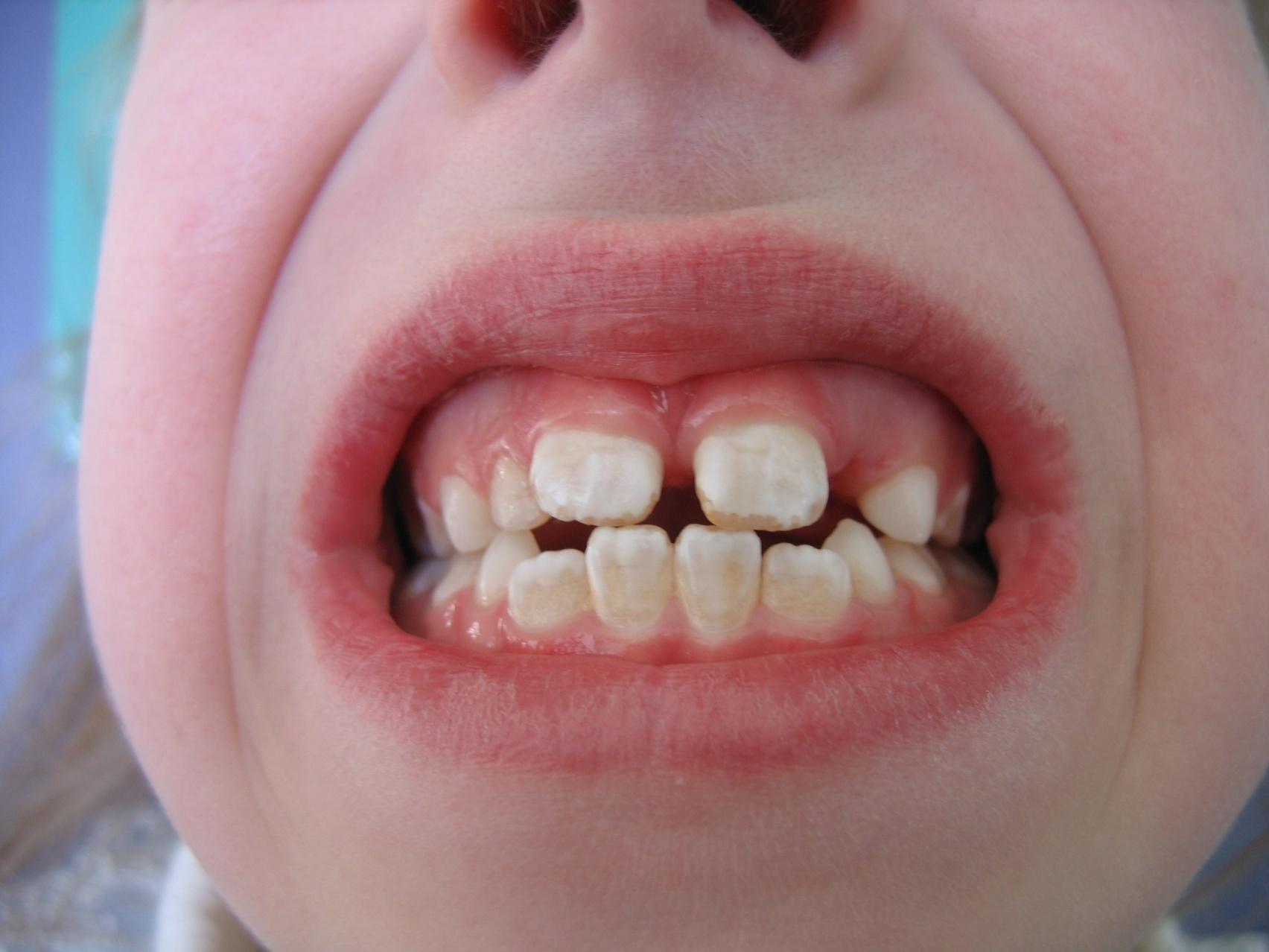 Некариозное поражение зубов – флюороз