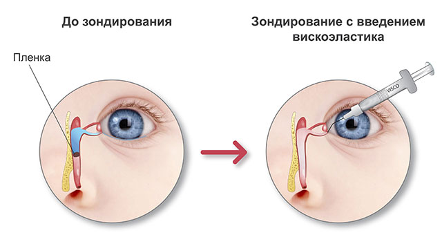 Зондирование слезного канальца