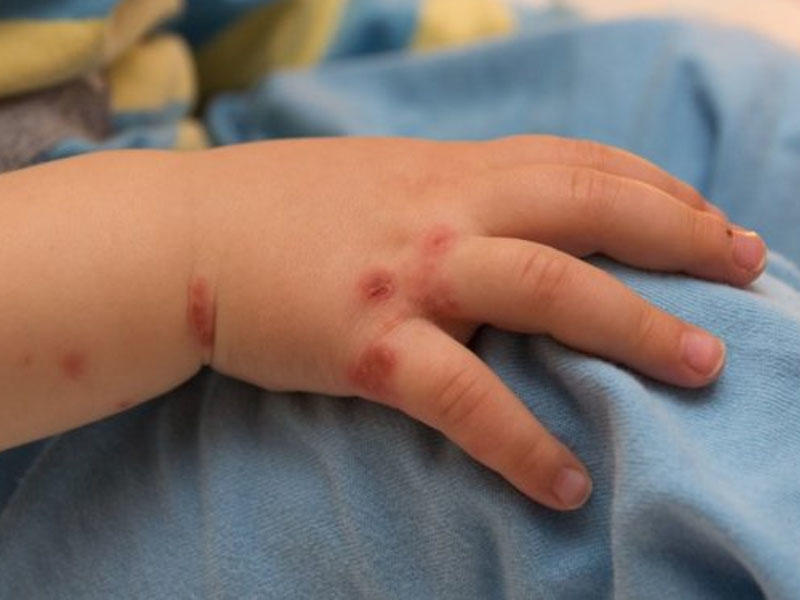 Сыпь у ребенка на руке