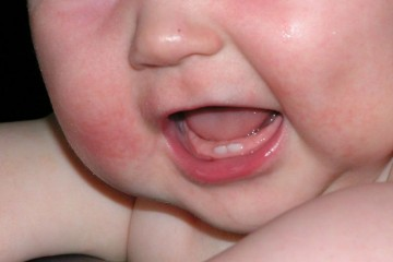 У ребенка видны два зуба